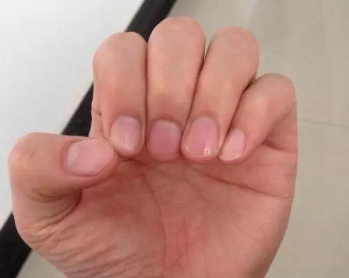 只有大拇指有月牙正常吗 拇指月牙面积变大怎么回事